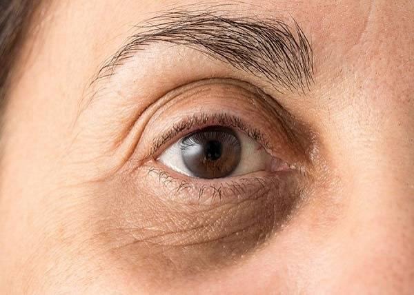 تیرگی اطراف چشم - اسیب هایی که آلودگی هوا به پوست میزند؟