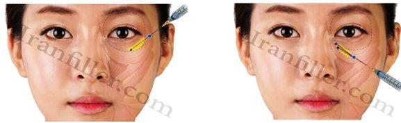 image 18a4044a813cf20dd0248e8ba9c1b4c1b5acb904 - تزریق ژل زیر چشم