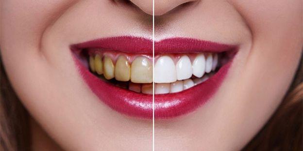 انتخاب بهترین متخصص زیبایی دندان برای درمان کامپوزیت