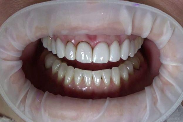 image 5b04687bb24ef37e59fad21962940cc9da108d42 - انتخاب بهترین متخصص زیبایی دندان برای درمان کامپوزیت